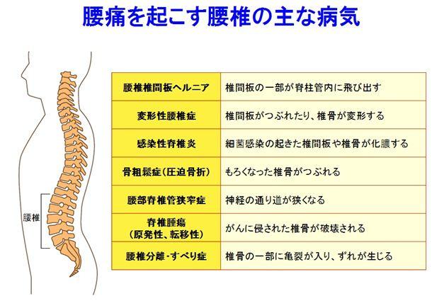 狭窄症16_R1