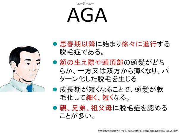 AGA(若年性脱毛症)について(...