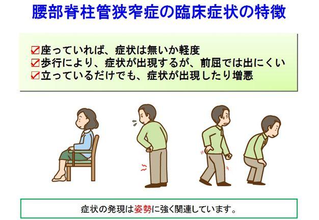 狭窄症11_R1