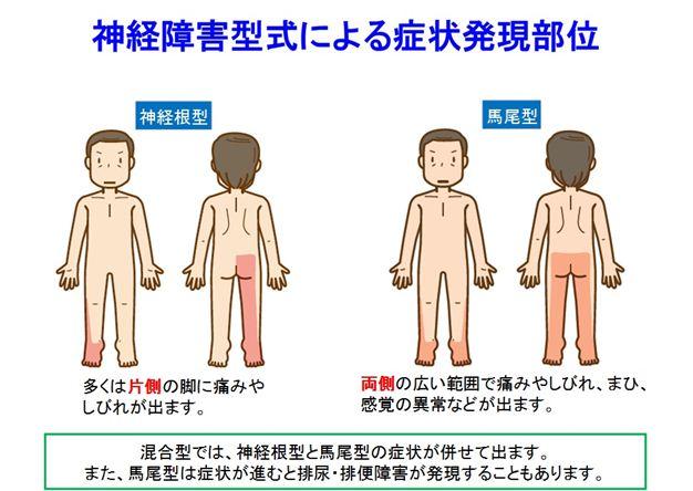 狭窄症8_R1