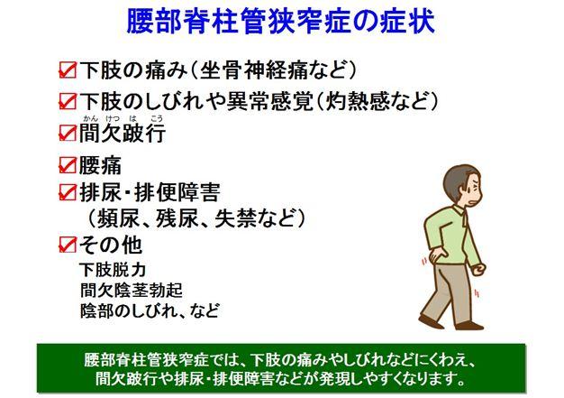 狭窄症7_R1