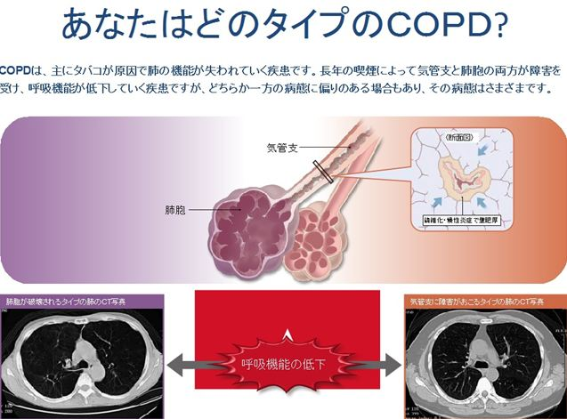 copd04_R