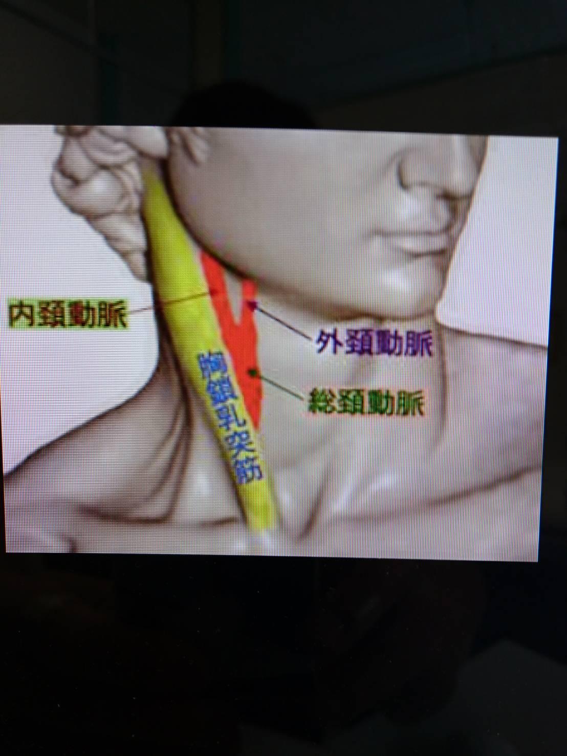 動脈 圧迫 頸
