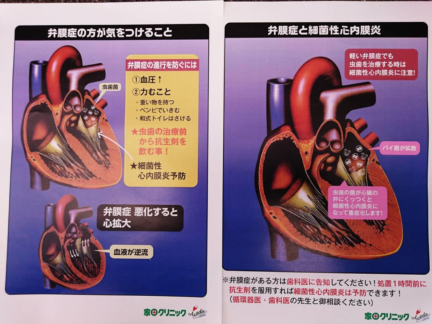 炎 内 膜 細菌 性 心