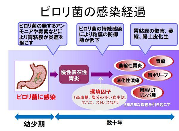 慢性 胃炎 治る
