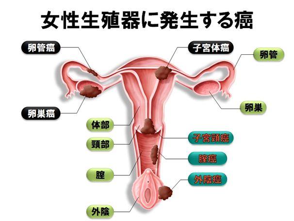 子宮1_R1