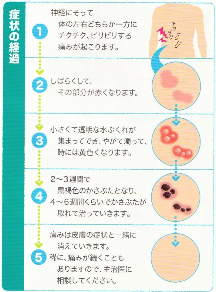 疱疹 は 帯状 と