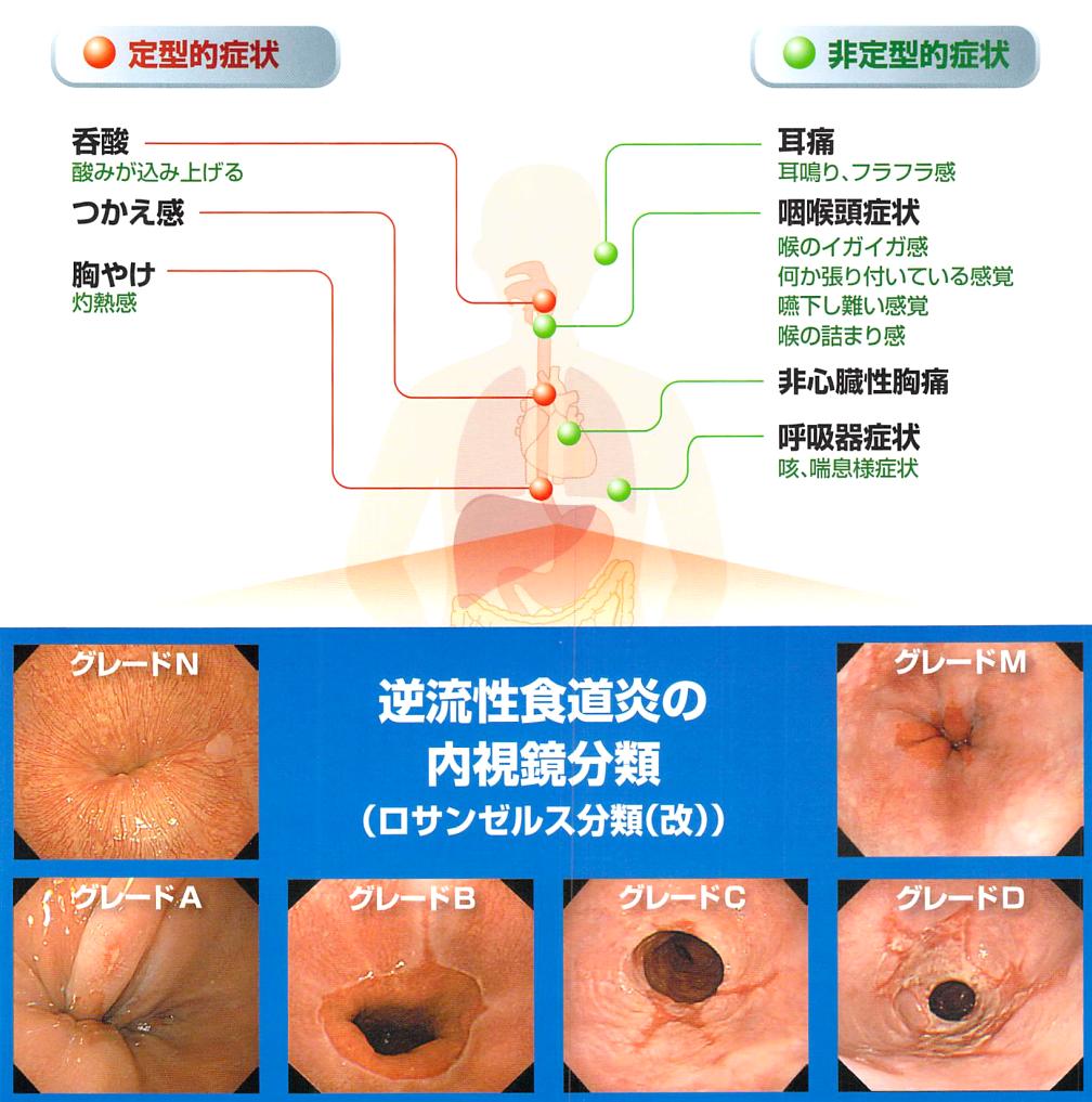 イガイガ コロナ が 喉 する