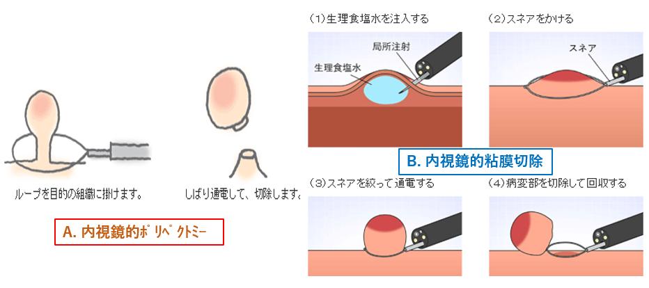 大腸がんの内視鏡治療