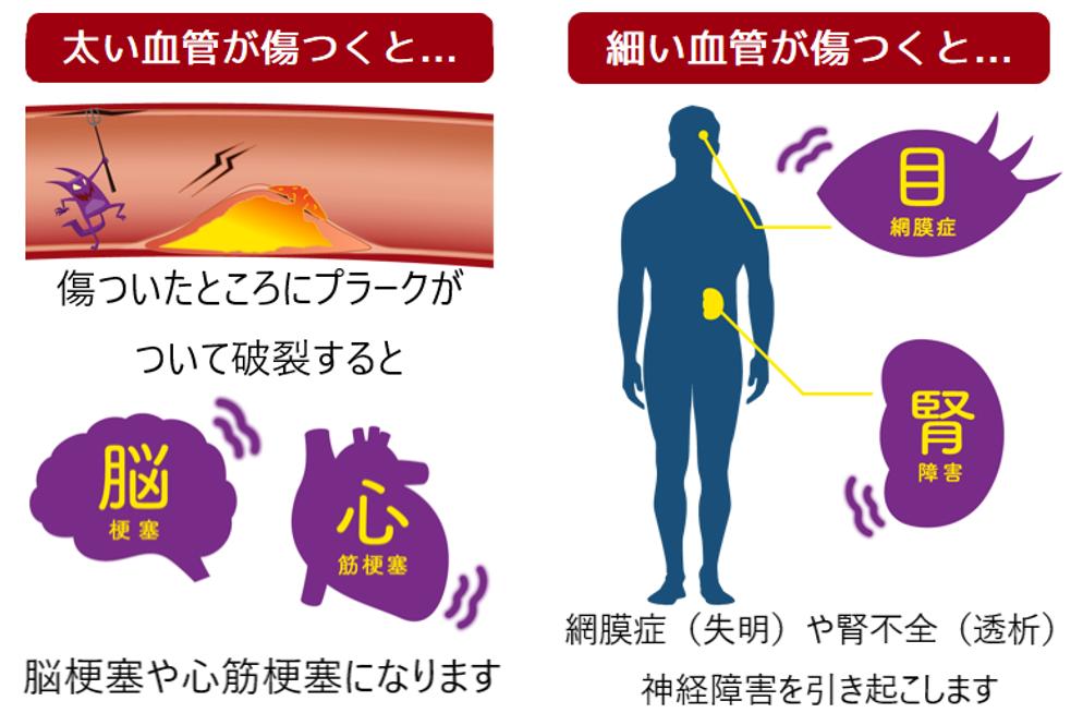 糖尿病合併症①